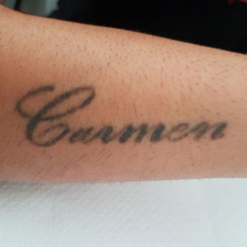 Borrado de Tatuajes en Málaga