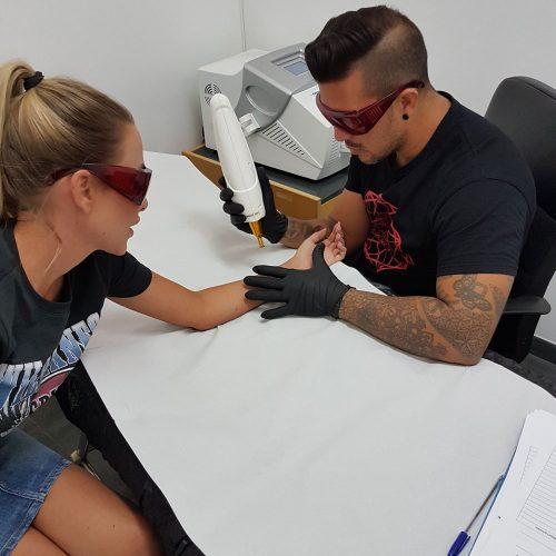 Eliminación de tatuajes en Fuengirola